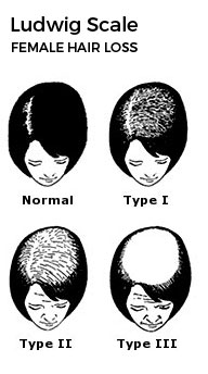 Ludwig Scale: Female Hair Loss Classifications