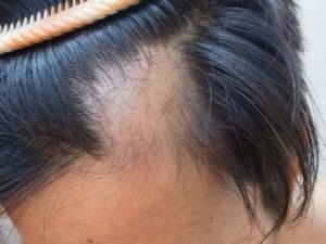 trichotillomania wigs tupelo ms