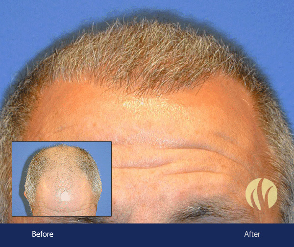 Tupelo, MS Men's Hair Replacement