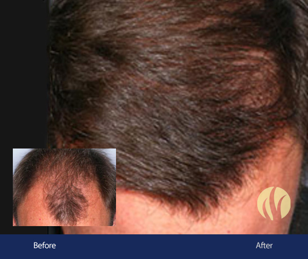 Tupelo, MS Men's Hair Transplants 2