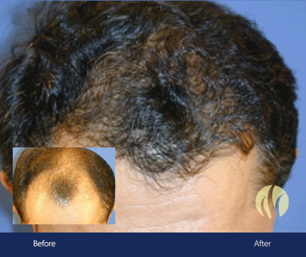 Tupelo MS Men's Hair Transplant 4