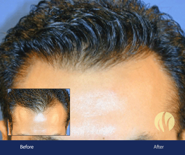Tupelo, MS Men's Hair Transplant 5