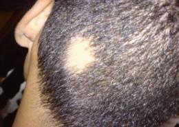 Alopecia Areata treatment, Tupelo Mississippi