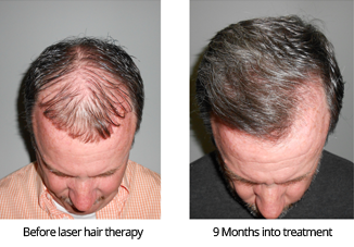 Men's Laser hair Therapy