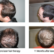 Laser Hair Therapy for Men