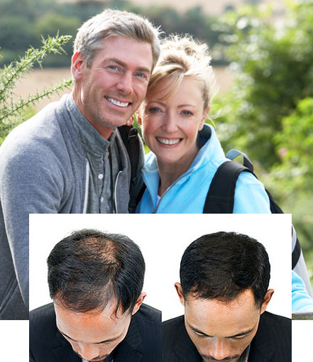 hair restoration transplants tupelo oxford starkville mississippi