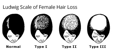 Women's hair loss classifications