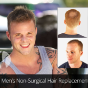 mens non-surgical hair loss replacement systems Tupelo MS