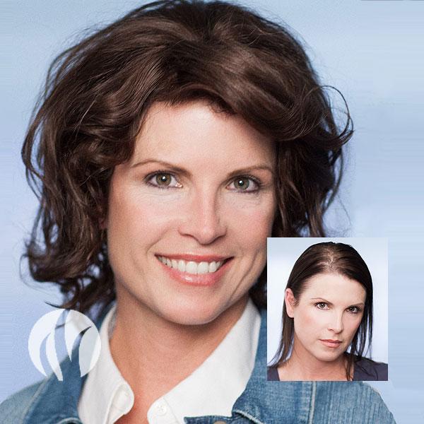 Women's Hair Restoration - Tupelo, MS