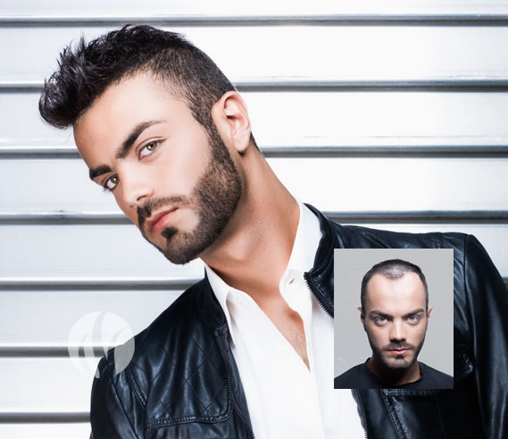 mens hair replacement tupelo mississippi