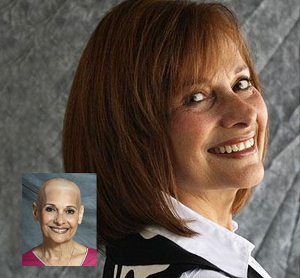 womens non-surgical hair replacement restoration tupelo oxford starkville ms