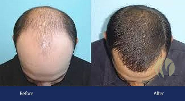 laser hair regrowth tupelo mississippi
